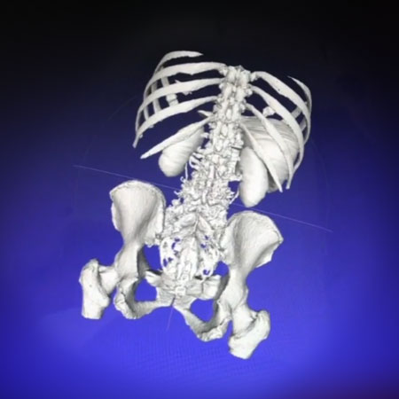 Example of a Patient-Specific 3-Dimensional Model Viewed in Augmented Reality